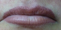 Lips after Contour & Blush (after 1 week the appearance will be 40% softer and lighter)