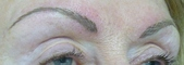 After Hair Stroke brow treatment (treatment will soften and lighten after 1 week)