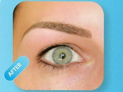 After brow treatment
